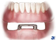 Dental implants as an anchor for dentures.