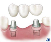 Dental Implants and a dental bridge.