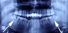 Image showing impacted wisdom teeth.