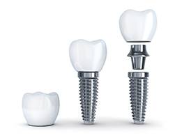 A type of dental implant
