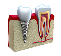 Dental Implants Portland OR